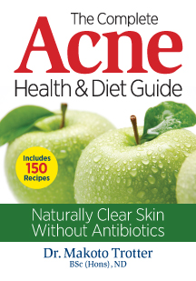 The Complete Acne Health & Diet Guide with #Recipes